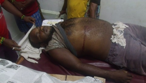 Epinus Magal's body with bullet wounds.