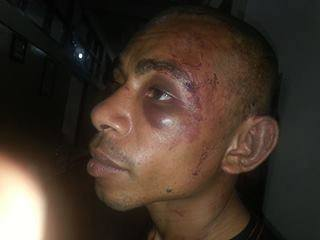 Two Papuan demonstrators were arrested and badly beaten.