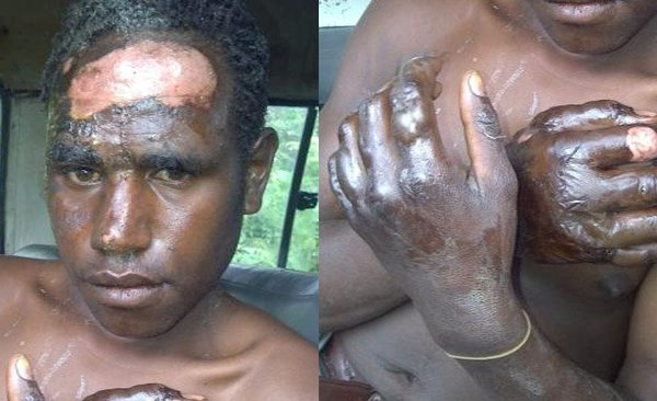A young Papuan who had glue poured over his head by Indonesian soldiers before being set on fire. 2011.